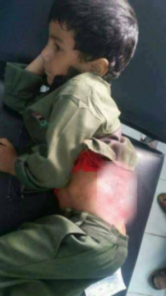 مأرب: اصابة طفلان بصاروخ كاتيوشا اطلقته الحوثيون على مدينة مأرب(صورة)