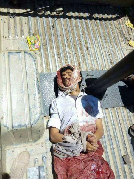 """عاجل.. تعرف على القيادي الحوثي الذي لقي مصرعه اليوم في معركة """"تبة الخزان"""" بتعز (الاسم والصورة)"""