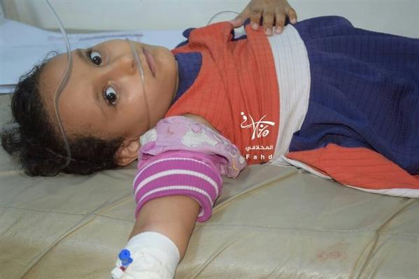 """قناصة الحوثيين يستهدفون طفلة لا تتعدى الـ""""10 """"سنوات في تعز"""