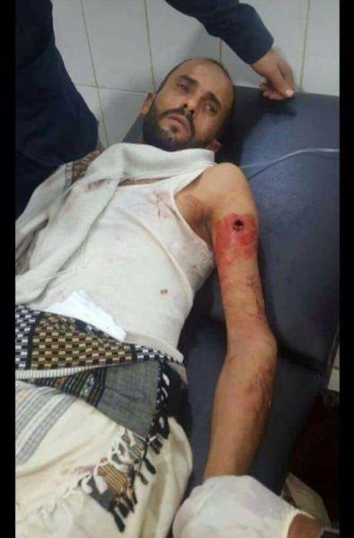 """الضالع: نجاة القيادي """"الحالمي"""" من محاولة اغتيال صباح اليوم .. صورة"""
