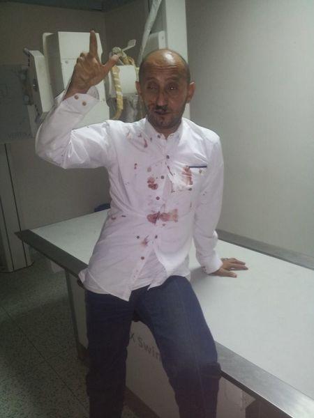 تعرض احد الصحفيين المقربين من حزب المؤتمر للضرب من قبل مليشيا الحوثي بصنعاء (صورة)
