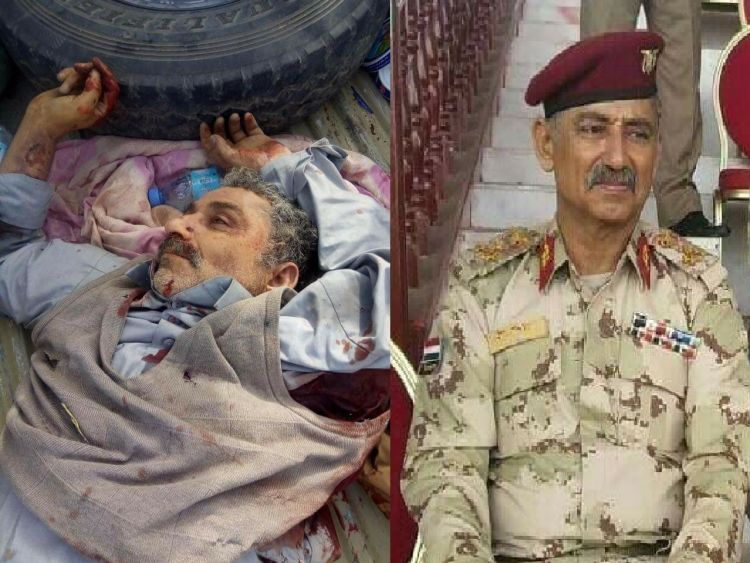 مصرع قائد عسكري حوثي كبير في المعارك الدائرة في مأرب  (صورة)
