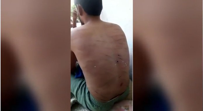 """بالفيديو.. """"الجلد وإطفاء السجائر في أجسادهم"""" .. هكذا تعذّب الإمارات معتقلين في سجون سرية بِعَدن"""