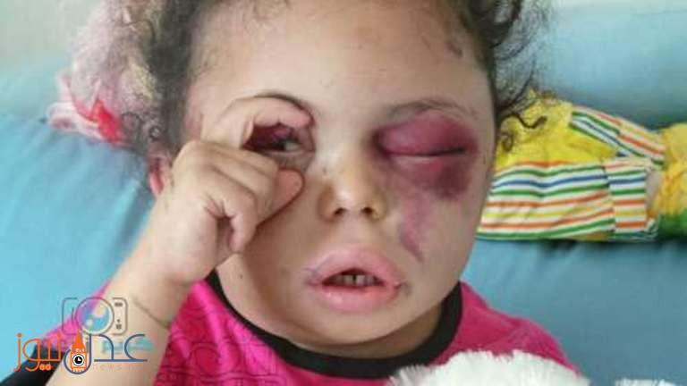 انباء عن وصول الطفلة بثينة الى عدن