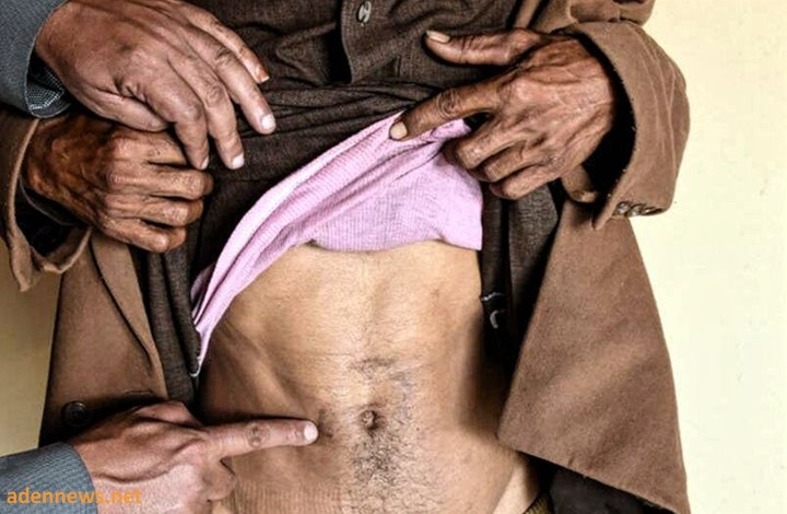 تقرير خطير يكشف عن المتاجرة بأعضاء اليمنيين في مصر..!!