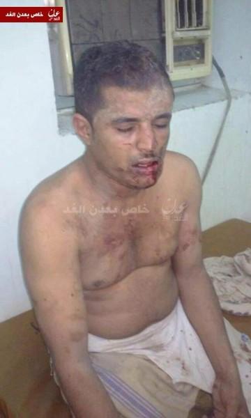 عدن.. مصادر امنية تتحدث عن اختطاف مسؤول امني وتعذيبة (صورة)