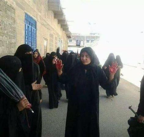 وزيرة الشؤون الاجتماعية والعمل: مليشيا الحوثي قتلت 500 امرأة وأصابت ما يقرب من 2000 امرأة اخرى