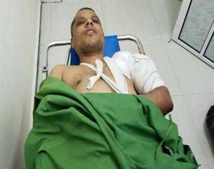 نجاة مدير مكتب التخطيط في تعز من محاولة اغتيال