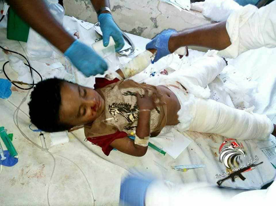 All of them of one family.. a child killed and 4 others injured in houthi shelling towards village in Taiz