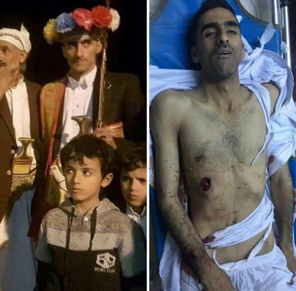 سبب إندلاع الإشتباكات بين مليشيا الحوثي وقبائل همدان