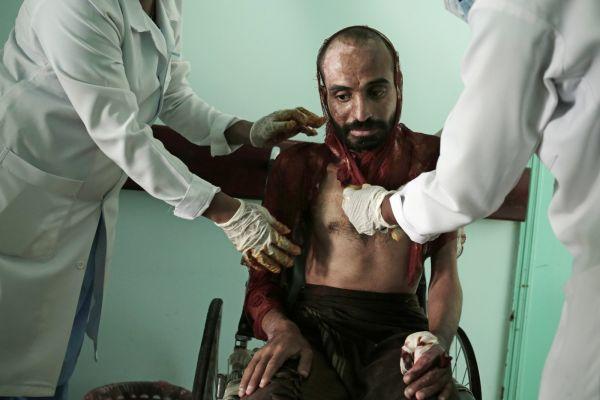 في تحقيق استقصائي لها.. وكالة أمريكية تكشف فضاعات التعذيب في سجون مليشيا الحوثي