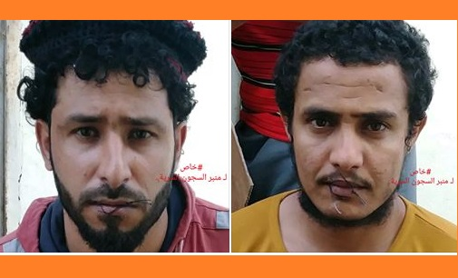 Leaked photos from UAE-run prison in Aden show detainees with sewed mouths