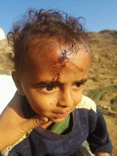 حجور: مليشيا الحوثي الحوثي تقصف الاطفال والنساء بالهاون بعد تلقيها هزائم فادحة