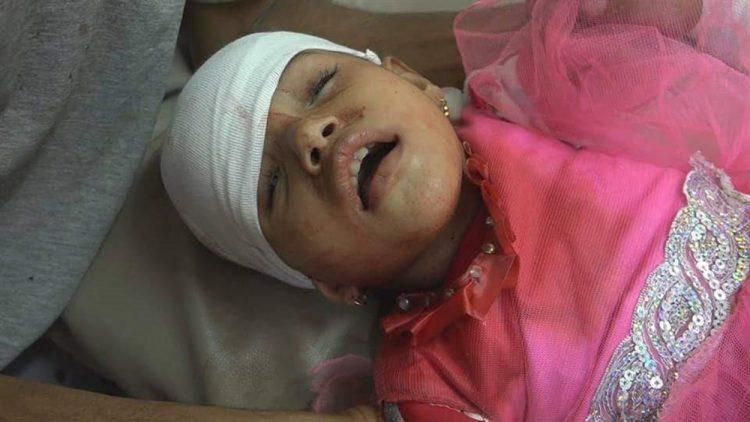 مليشيا الحوثي تقصف منازل المواطنين في تعز وإصابة 5 أطفال جراء القصف