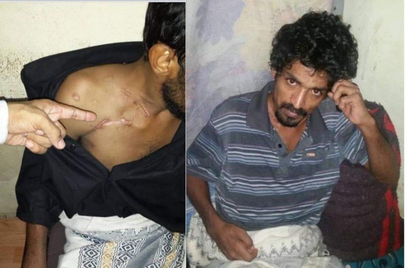 شاهد آثار التعذيب على جسده.. مليشيات الإمارات تفرج عن معتقل بعد 3 سنوات من الاخفاء القسري