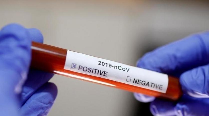 دراسة صينية: فصيلة دمك قد تتحكم في فرص إصابتك بـ«كورونا»